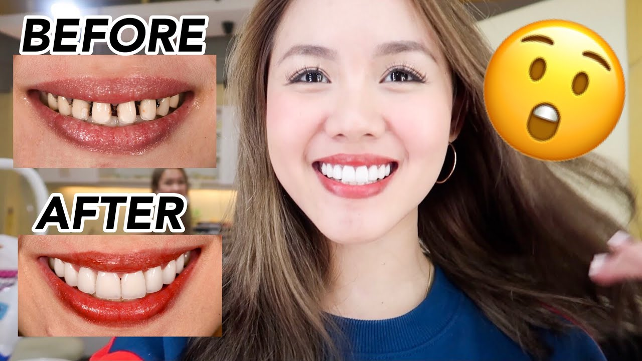 how much for veneers